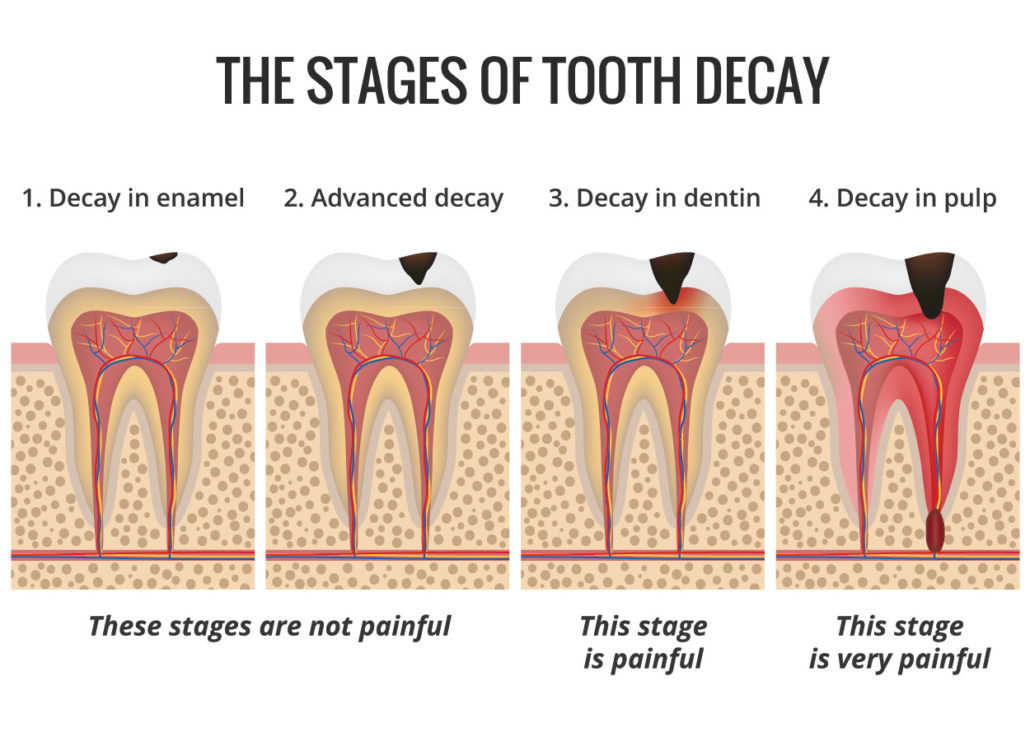Can You Get Rid Of Tooth Decay Naturally