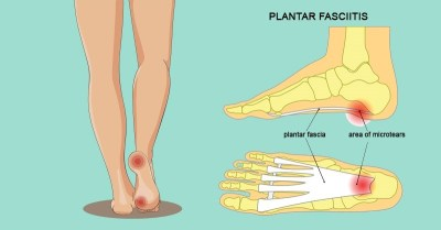 6 Hidden Causes Of Foot Pain And How To Get Relief Fast