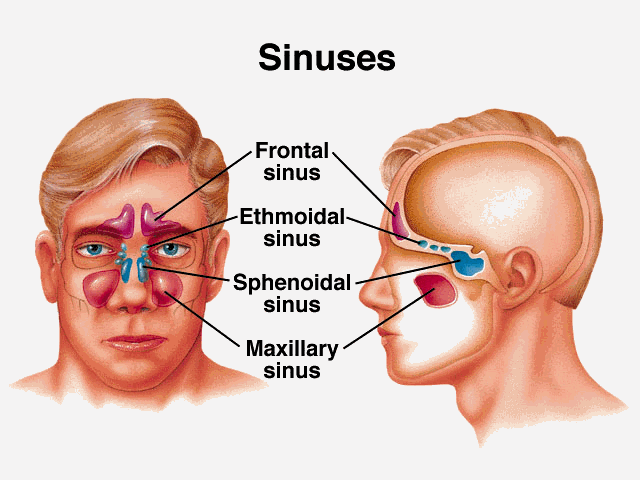 Say goodbye sinusitis by mixing only these two ingredients