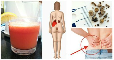 Half A Cup Of This Drink Will Help You Get Rid Of Kidney Stones Forever