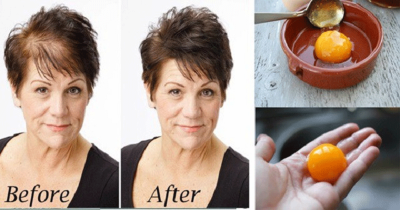 The Magic Recipe For Fastest Hair Growth 3 Ingredients Only