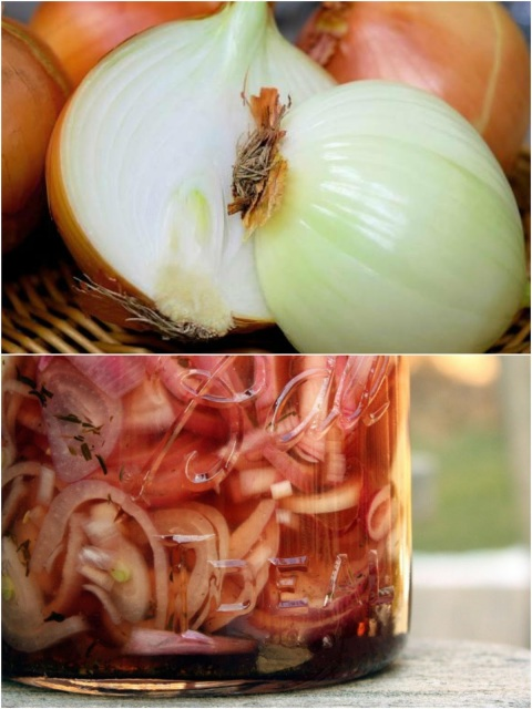 DIY Lacto-Fermented Onions for Stomach Acid, Melting Fat and Better Brain Work