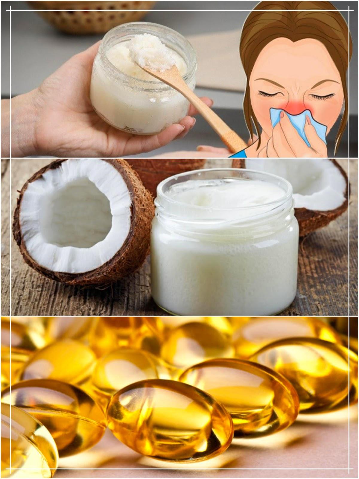 Post Nasal Drip Natural Remedies Australia