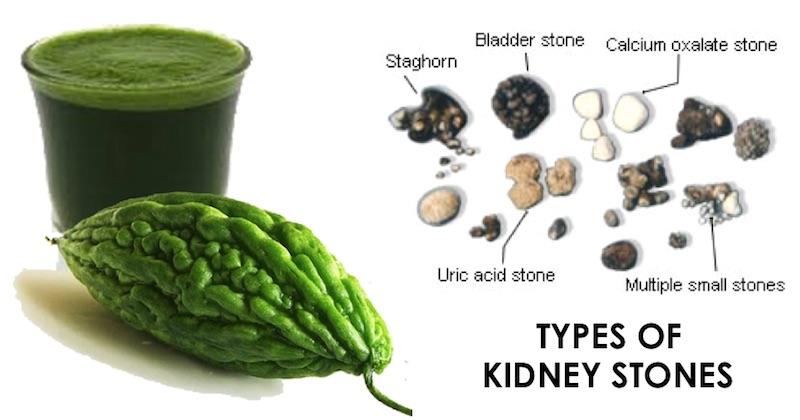 kidney stones drink break down juice bittergourd elimination kidneys foods causes healthy build